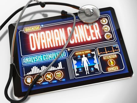 ovarian: Ovarian Cancer - Diagnosis on the Display of Medical Tablet and a Black Stethoscope on White Background. Stock Photo
