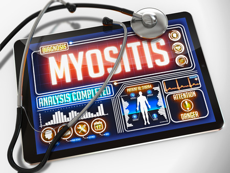 myopathy: Myositis - Diagnosis on the Display of Medical Tablet and a Black Stethoscope on White Background.