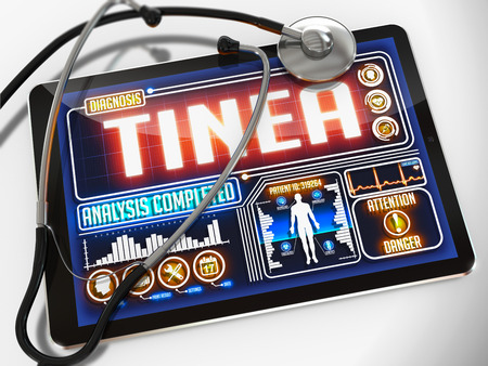 sores: Tinea - Diagnosis on the Display of Medical Tablet and a Black Stethoscope on White Background. Stock Photo