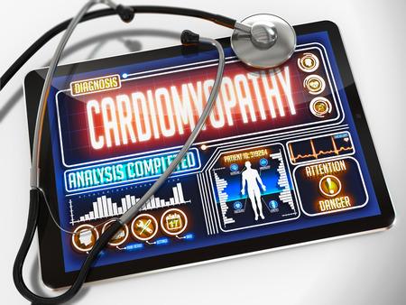 tachycardia: Miocardiopat�a - Diagn�stico de la pantalla de la tableta de m�dico y un estetoscopio Negro sobre fondo blanco. Foto de archivo