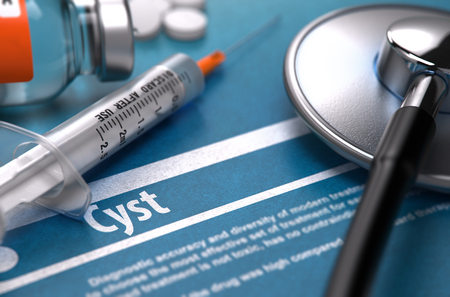 cyst: Cyst - Printed Diagnosis on Blue Background and Medical Composition - Stethoscope, Pills and Syringe. Medical Concept. Blurred Image.