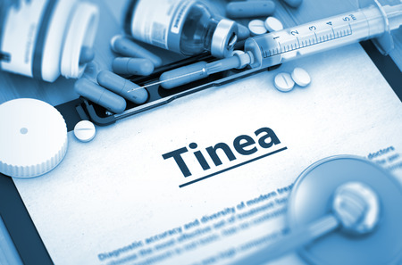 fungal disease: Tinea - Medical Report with Composition of Medicaments - Pills, Injections and Syringe. Tinea, Medical Concept with Pills, Injections and Syringe. 3D Render.
