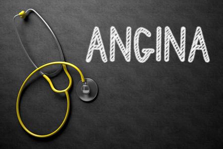 angina: Concepto médico: La angina de pecho en la pizarra Negro. Concepto médico: Pizarra Negro con manuscrito concepto médico - Angina de pecho con el estetoscopio amarillo. Vista superior. Representación 3D.