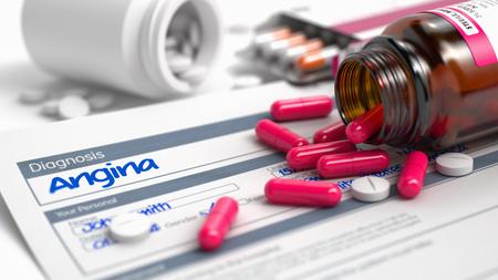 angor: Escrita a mano Diagnóstico angina en los diagnósticos diferenciales. Medicamentos Composición de píldoras rojas, ampollas de Pille y frasco de tabletas. Ilustración 3D.