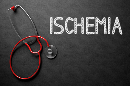 embolism: Medical Concept: Ischemia Handwritten on Black Chalkboard. Top View of Red Stethoscope on Chalkboard. Medical Concept: Black Chalkboard with Ischemia. 3D Rendering.