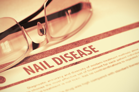 dystrophy: Nail Disease - Printed Diagnosis on Red Background and Glasses Lying on It. Medicine Concept. Blurred Image. 3D Rendering. Stock Photo