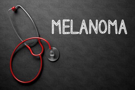 insolación: Concepto médico: Pizarra Negro con melanoma. Concepto médico: Melanoma - Texto sobre Negro pizarra con Red estetoscopio. Representación 3D. Foto de archivo