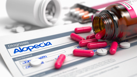 overdose: Alopecia Text in Anamnesis. Close Up View of Medical Concept. Alopecia - Handwritten Diagnosis in the Disease Extract. Medical Concept with Heap of Pills, Close View, Selective Focus. 3D Illustration.