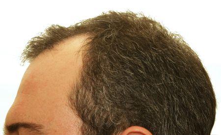 mannelijk hoofd met haaruitval symptomen