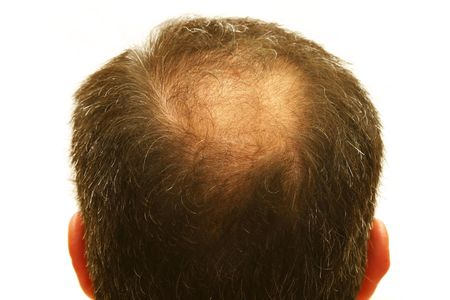 male head with hair loss symptoms Stock Photo