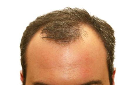 mannelijke hoofd met haar verlies symptomen Stockfoto