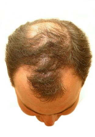 scalp: balding head Stock Photo