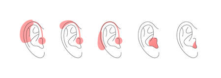 Deaf and hear aid concept. Vector flat illustration set. Collection of hearing aid device in outline human ear silhouette isolated on white. Design element for medicine, health care.