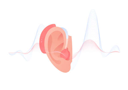 Deaf and hear aid concept. Vector flat illustration. Hearing aid device in human ear with sound wave on background isolated on white. Design element for medicine, health care.
