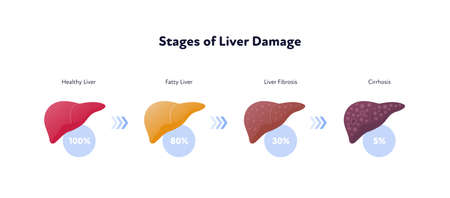 Liver damage infographic. Vector flat illustration. Anatomical human organ. Stages of cirrhosis disease from healthy to fatty and fibrosis. Arrow and percent sign. Design for health care, education