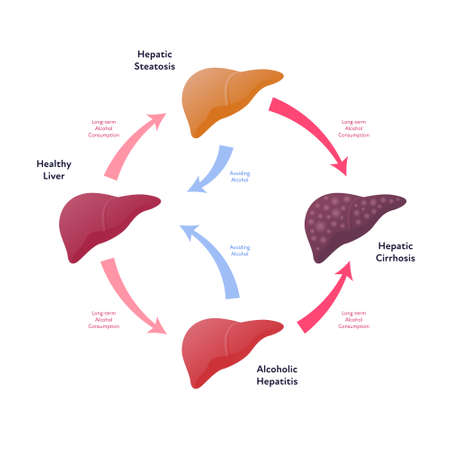 Liver damage infographic. Vector flat illustration. Anatomical human organ. Stages of cirrhosis disease from healthy to fatty and fibrosis. Circle scheme with arrows. Design for health care, education