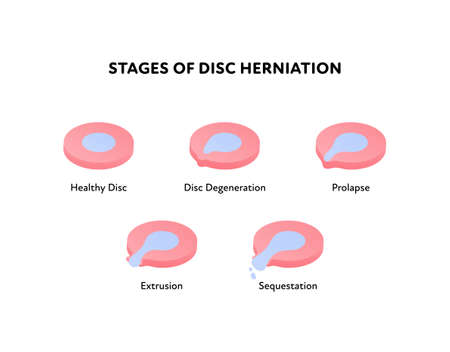 Spine disk stages of herniation. Vector flat anatomical illustration. Icon set. Healthy, degeneration, prolapse, protrusion, sequestation stage. Design for science, biology, health care.