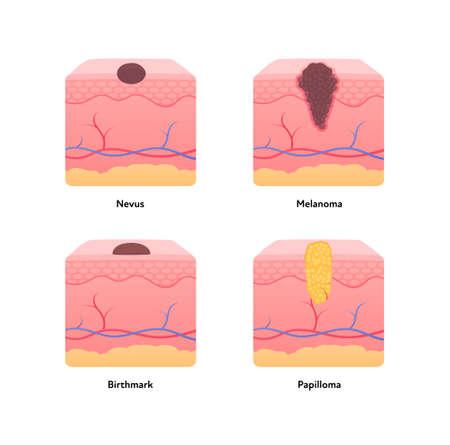 Melanoma cancer anatomical infographic poster. Vector flat medical illustration. Comparison of nevus, tumor, birthmark and papilloma. Design for healthcare, oncology, dermatology.  イラスト・ベクター素材