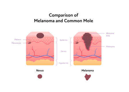 Melanoma cancer anatomical infographic poster. Vector flat medical illustration. Comparison of tumor and common mole with text. Design for healthcare, oncology, dermatology.