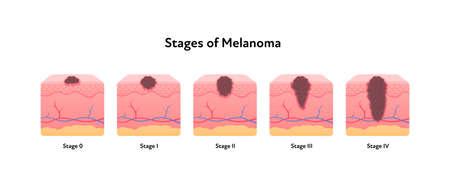 Melanoma cancer anatomical infographic poster. Vector flat medical illustration. Stages of tumor disease. Design for healthcare, oncology, dermatology.