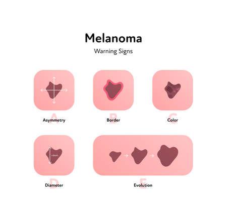 Melanoma cancer anatomical infographic poster. Vector flat medical illustration. Warning signs of tumor disease. Asymmetry, border, color, diameter. Design for healthcare, oncology, dermatology.  イラスト・ベクター素材