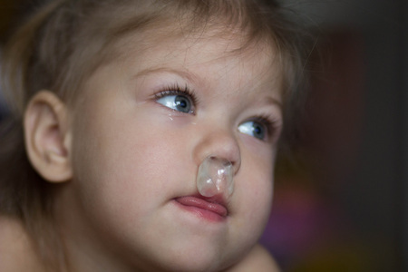 child has a runny nose with c