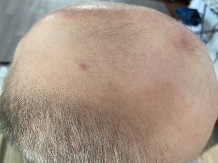 Middle-aged man concerned with hair loss. Baldness. Top view