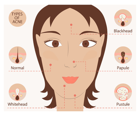 wrinkle: Types of acne and pimples human skin poster. Facial treatments infographic in modern flat design. Illustration