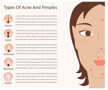 puberty: Types of acne and pimples human skin poster. Facial treatments infographic in modern flat design. Sebum in the clogged pore,growth bacteria, redness and inflammation. Beauty care for women.