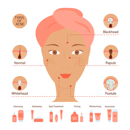 puberty: Types of acne pimples human skin poster. Facial treatments infographic. Modern flat design. Sebum in clogged pore, growth bacteria, redness, inflammation. Womens Beauty care. Vector illustration eps10