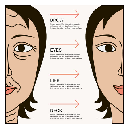 plastic surgery: Facial plastic surgery Illustration