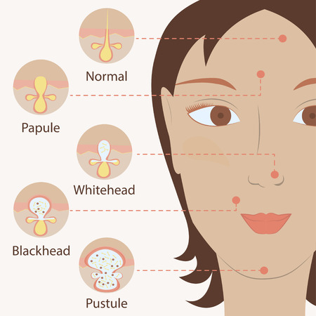 puberty: Types of acne pimples