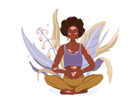 Love yourself with problem vitiligo skin vector background. Self-care body wellness concept. African woman sitting in yoga posture. Girl fold her hands on her stomach, fingers formed heart shape Vetores