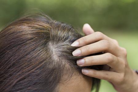 Junge Frau zeigt ihre grauen Haarwurzeln