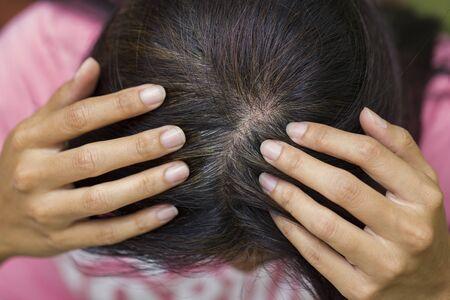 tinte de cabello: La mujer joven muestra sus raíces del pelo gris Foto de archivo