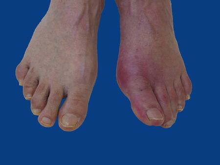 Foot disease Rheumatism and gout. Red leg swelling. Pain in the foot.
