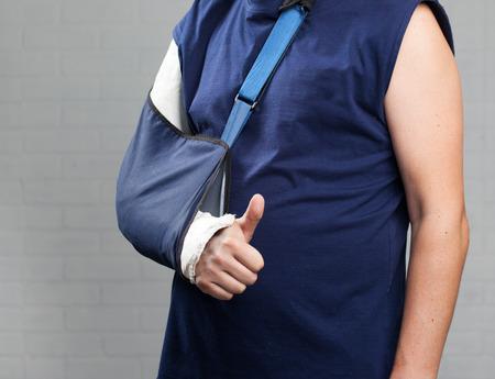 splint: Hombre con un yeso. Fractura de brazo, el hombro. Lesión Foto de archivo