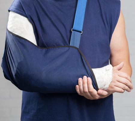 zbraně: Muž s omítkou. Zlomenou ruku, rameno. Zranění Reklamní fotografie