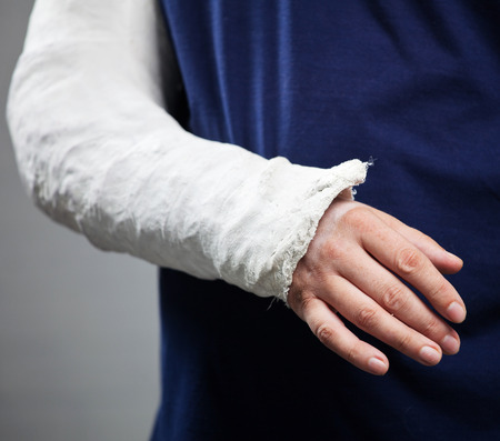 adult bones: Man with a plaster. Broken arm, shoulder. Injury