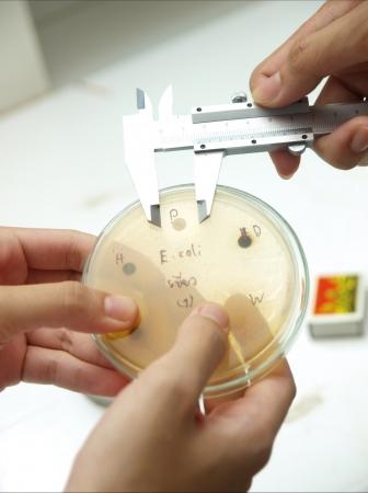 Microbiologie culture par mesure de la plaque d'�trier Banque d'images