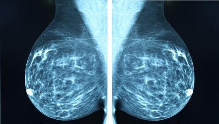 l'imagerie radio mammographie pour le diagnostic du cancer du sein