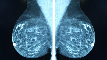 Mammogram radio imaging for breast cancer diagnosis