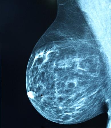 Mammografia immagini della radio per la diagnosi del cancro al seno Archivio Fotografico - 22259416