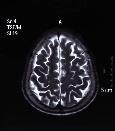 MRI scan image of brain for diagnosis photo