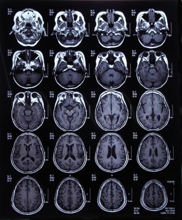 L'image IRM du cerveau pour le diagnostic