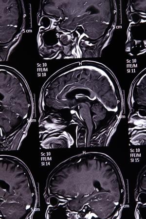 MRI scan image of brain for diagnosis Foto de archivo