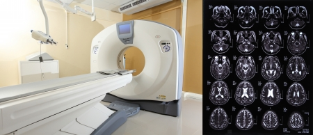 CT scan an advance technology for medical diagnosis Stock Photo