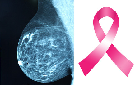 Pink ribbon for breast cancer awareness with mammogram image background photo