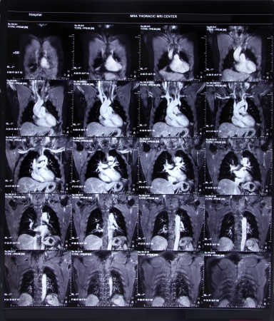 Image of CT scan chest and heart