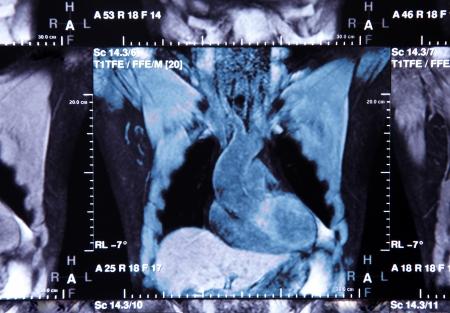 Image de la tomodensitom�trie thoracique et cardiaque